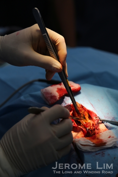 A very real looking surgical procedure demonstrated by the surgical team.